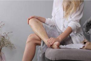 7 Съвета Как Да Се Грижим за Разширени Вени в Домашни Условия