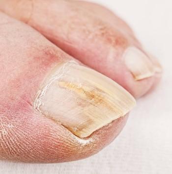 fungi, nails