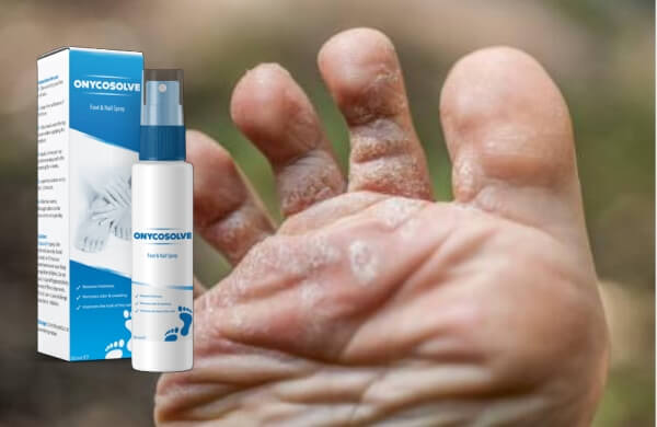 OnycoSolve spray, fungus infection