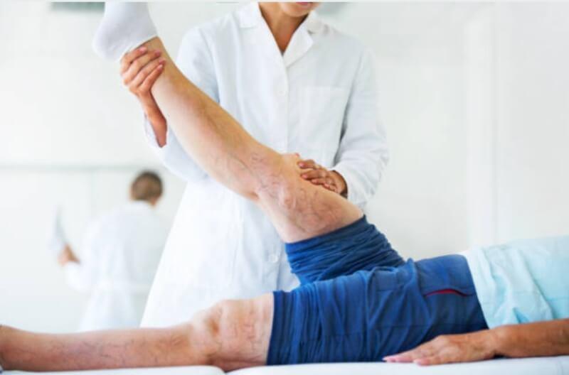 varicose veins, treatment