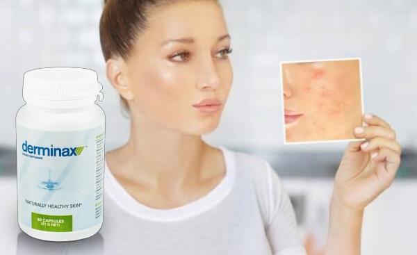 capsules, acne