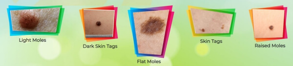 warts, papilloma effects and results