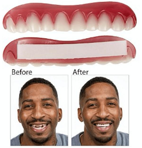 easy smile veneers effects