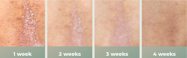 psoriasis skin effects cream