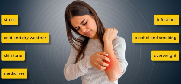 psoriasis causes, woman, itching skin