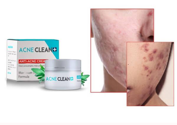 Breakouts, Pimples cream, acne clean