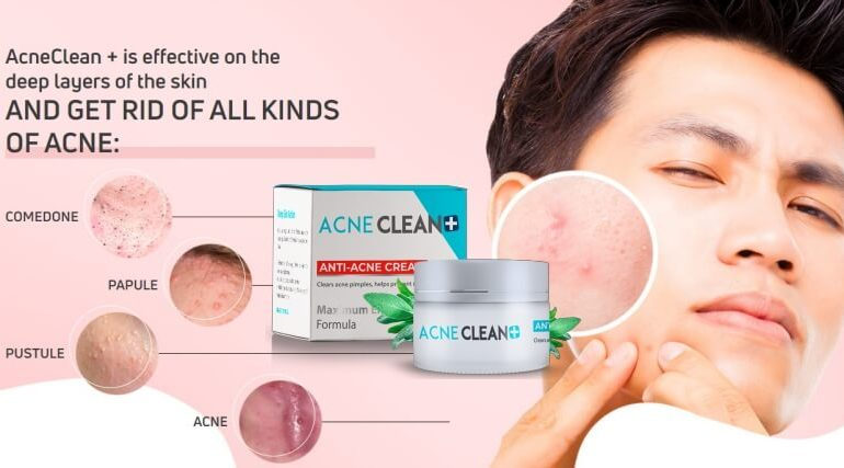 acneclean + cream opinions comments Malaysia