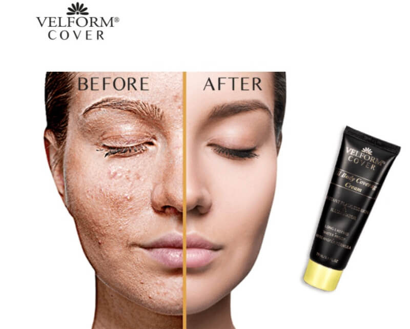 velform cover cream opinions comments